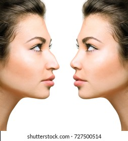 Woman before and after rhinoplasty isolated on white background.
