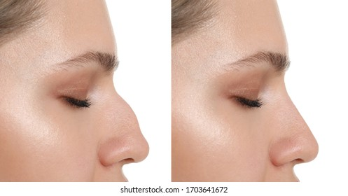 Woman before and after rhinoplasty on white background