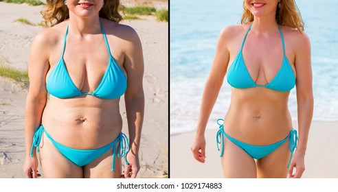 Woman before and after weight loss success