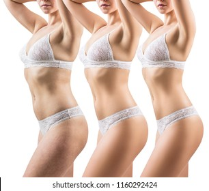 Woman before and after weight loss. Body slimming concept. Isolated on white.
