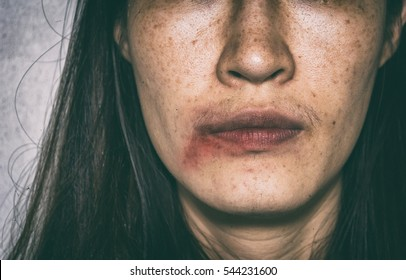 woman being abuse, bruised on face with black shadow