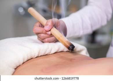 Woman being treated with acupuncture and moxibustion treatment