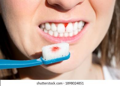 Woman with bleeding gums during teeth brushing. Hard toothbrush problem. Periodontal disease, avitaminosis, gingivitis, scurvy