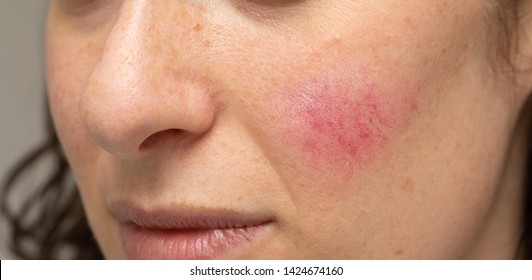 Woman with blotchiness on the cheek caused by bacterial infectio