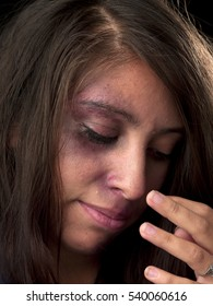 Woman With Body Facial Injuries Which Can Represent Wife Physical Abuse Victim Of Crime And