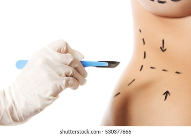 Woman body marked out for cosmetic surgery.