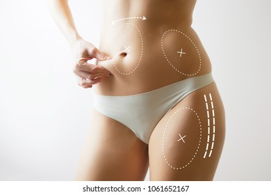woman body with marks on stomach