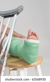 Woman with broken ankle and green cast on her left leg.