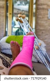 Woman with broken leg broken leg in pink plaster cast resting on a coach