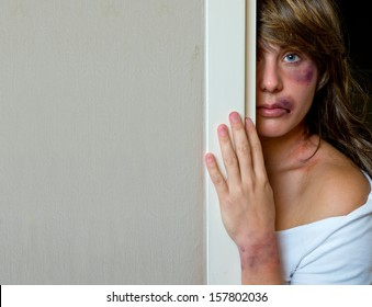 woman with bruises victim of domestic violence or accident hiding behind wall