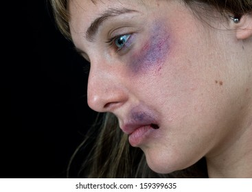 woman with bruises victim of domestic violence or accident face close up