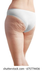 Woman with cellulite on buttocks and legs against white background