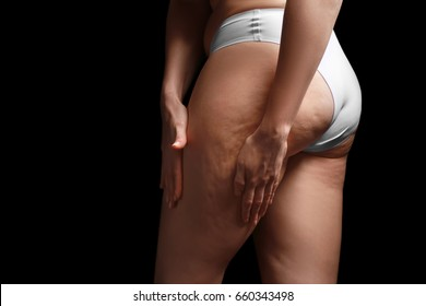 Woman with cellulite problem on black background