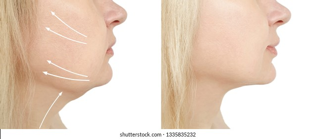 woman chin before and after procedure