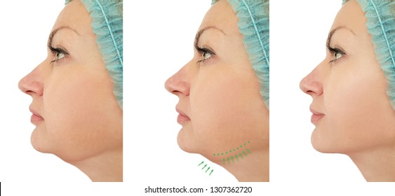 woman chin lift before and after procedures