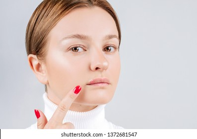 Woman with cold sore touching her lips. Herpes on lips of the young woman.