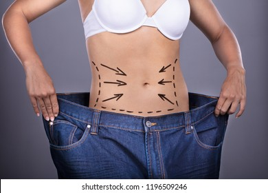 Woman With Correction Lines On Belly Showing Weightloss By Wearing Old Jeans