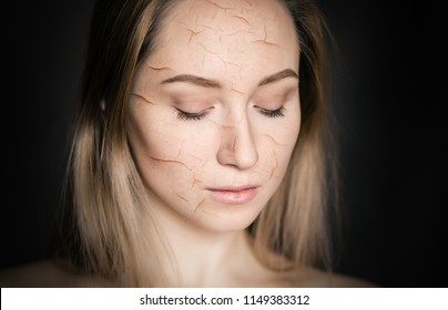 Woman with cracked skin as cosmetic and dehydration effect concept.