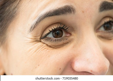 Woman with crow's feet in her eyes
