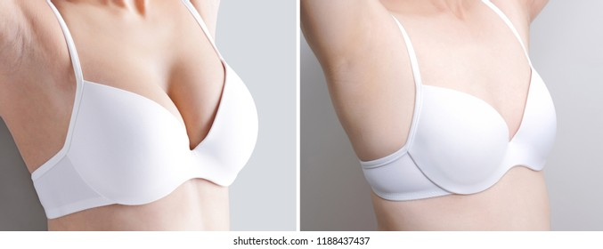 woman with different chest cup concept before and after on the gray background