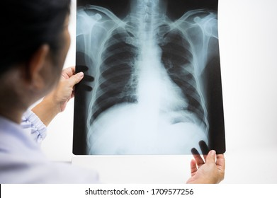 Woman doctor hands holding patient chest x-ray film before treatment.Image lung at radiology department in hospital.Covid-19 scan body xray test detection for covid virus epidemic spread concept.