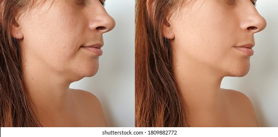 woman double chin   after treatment