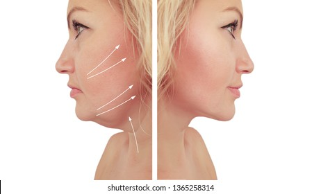 woman double chin sagging   after procedures
