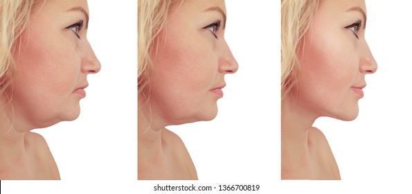 woman double chin sagging   before and after procedures