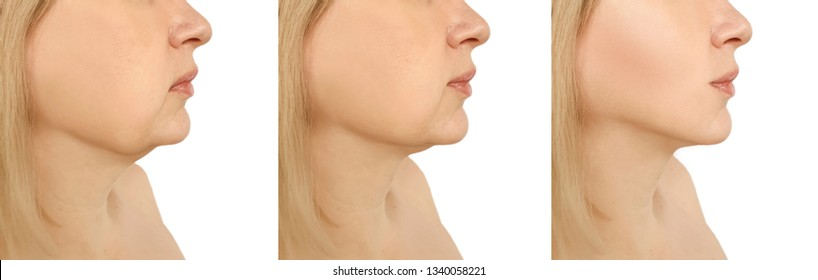 woman double chin tightening after procedures