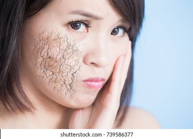 woman with dry skin on the blue background