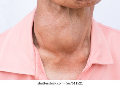 Woman with enlarged hyperthyroid gland. Hyperthyroidism symbol. Patient with a goiter. Medical concept. Anatomy of people.
