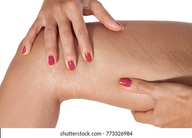 Woman examining with hands stretch marks on her leg