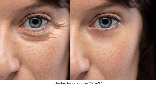 Woman eyes before and after an anti age treatment for wrinkles and crow's feet