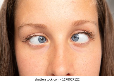 Woman eyes suffering from strabismus