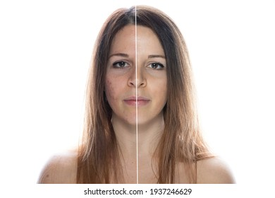 On face spots face How to