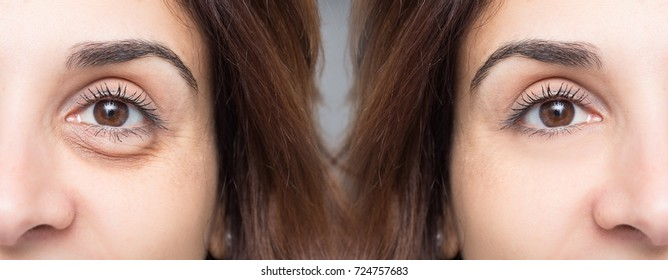 Woman face before and after blepharoplaty, eye with and without