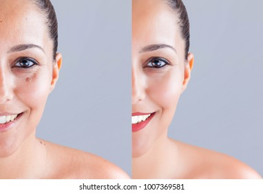 Woman face before and after cosmetic surgery face. Plastic surgery concept.