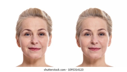 Woman face before and after cosmetic procedure. Plastic surgery concept.