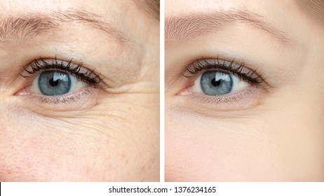 Woman face, eye wrinkles before and after treatment - the result of rejuvenating cosmetological procedures of biorevitalization, face lifting and pigment spots removal.