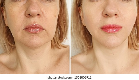 woman face lift   after treatment