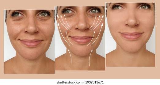 woman face lift before and after treatment