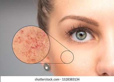 Woman face skin imperfection, capillaries in zoom circle