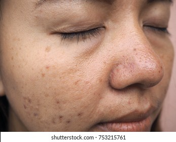 woman face with skin problems, melasma, acne scar, skin problems concept