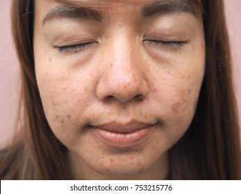 woman face with skin problems, melasma, acne scar,