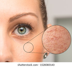 Woman face skin problems in zoom circle