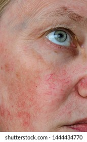 Woman face skin with vascular stars and couperose.