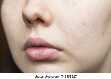 a woman with a face in small pimples and black dots