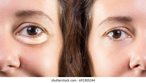 Woman face with and without eye bags before and after cosmetic treatment
