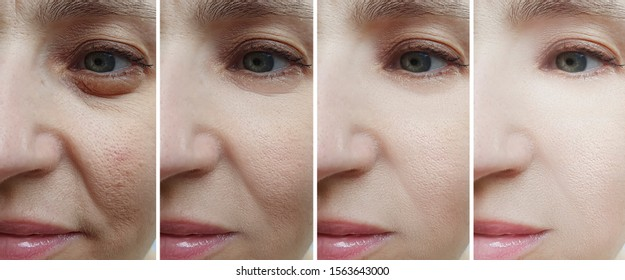 woman face wrinkles   after treatment collage