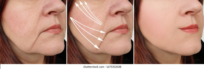 woman face wrinkles   after treatment